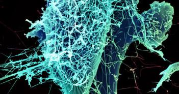 Wirus Eboli w Wielkiej Brytanii